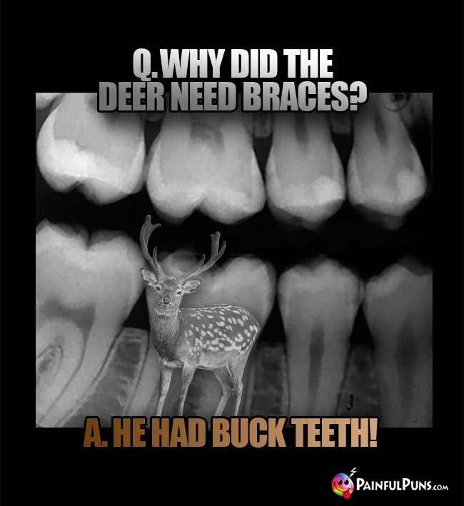 Q. Why did the deer need braces? A. He had buck teeth!