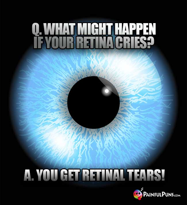 Q. What might happen if your retina cries? A. You get retinal tears!