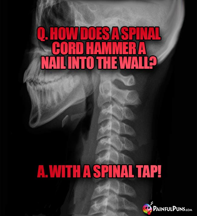 Q. How does a spinal cord hammer a nail into the wall? A. with a spinal tap!